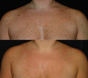 IPL-chest-before-after